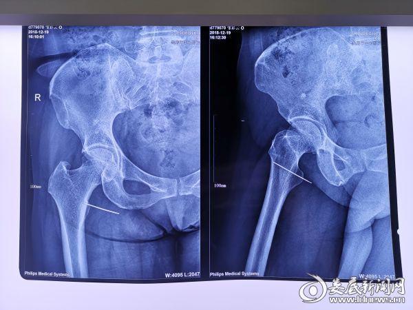术前检查可见一长长的钢针插在体内