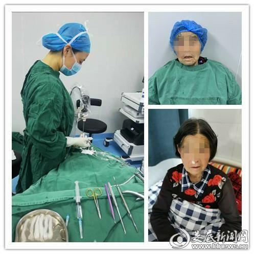 鼻内镜下鼻腔泪囊吻合术 让七旬老妇成功解忧_毒霸看图