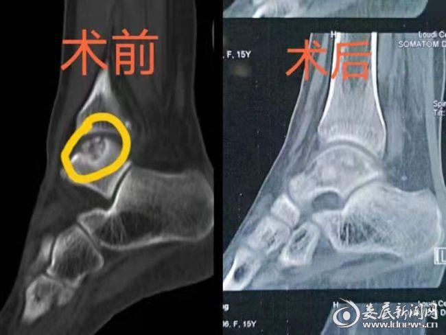 术前术后的CT对比